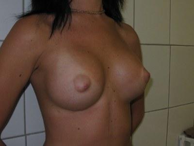 Центр пластической хирургии - увеличение груди